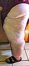Lymphoedema Academy of Australia 4 DAY LYMPHOEDEMA COURSE