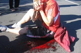 Mary Loader , 65 , on Saturday 10 April 2010, after a bottle thrown from a passing car struck her in the face in Papamoa.