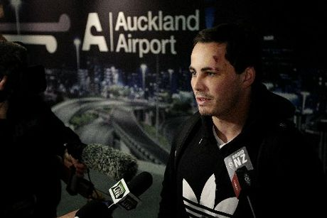 BRUISED: Zac Guildford arrived at Auckland Airport this morning to face a barrage of questions from reporters. PHOTO/NZ HERALD.