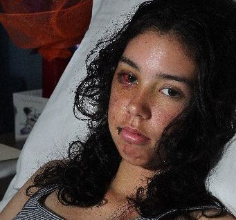 Holly Atkins, 16, of Crownthorpe was knocked off her bike during a cycle race last weekend.