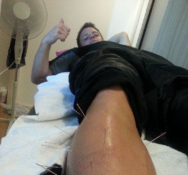"TWEETER: Hawke's Bay Black Stick Shea McAleese tweeted this photo of himself getting treatment after one of his games. ""#acupuncture anyone?? Here is a lot of needles in my shin from a whack I took yesterday!! @BlackSticks #olympics""."