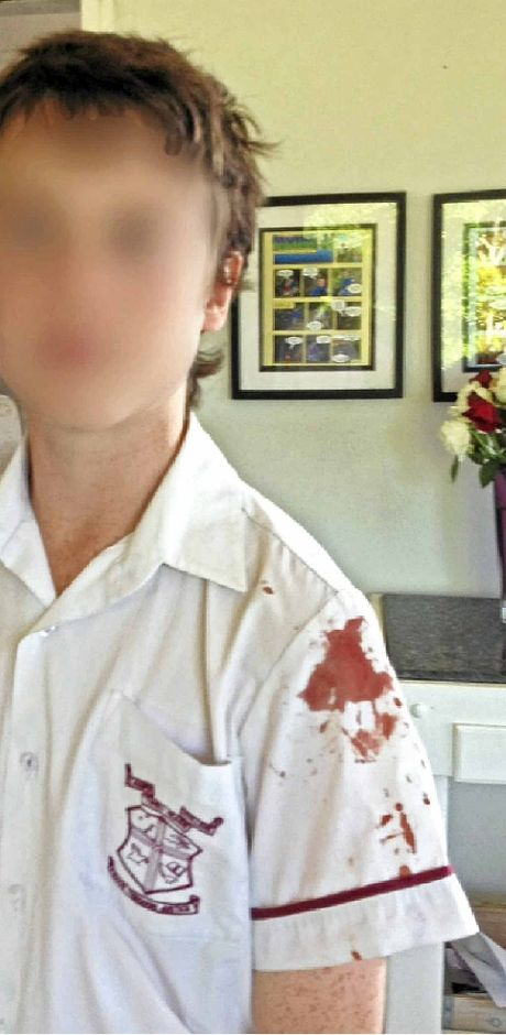 St Josephs College Year 8 student Lachlan Raferty was stabbed with a pen by a classmate during school recess.