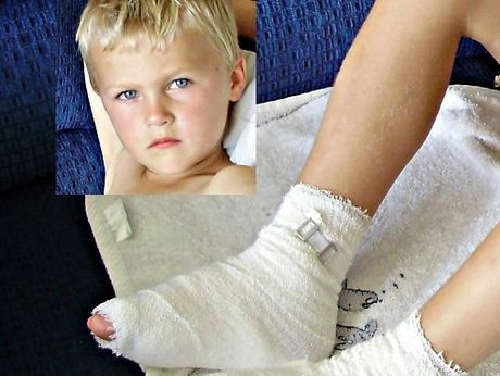 Oliver Turner burned his feet when he ran over the unextinguished ashes of a beach bonfire at Ruakaka. Photo / Turner family