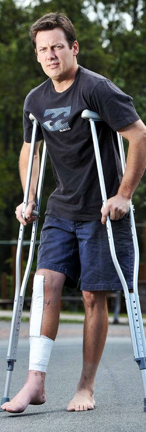 BRAVE STAND: Brad Craig suffered appalling leg injuries (top and bottom of page) after he confronted a gang of alleged car thieves outside his home in Springfield Lakes.