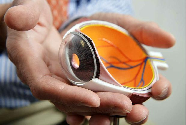 PERFECT: Dr Andrew Apel holds a 3D model of an eye.