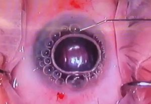SO DELICATE: Close-up of a corneal transplant operation.