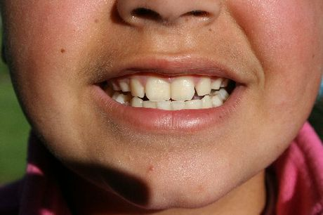 There's a link between parenting and tooth decay.