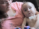 Baby's life saved with groundbreaking 3D printed device