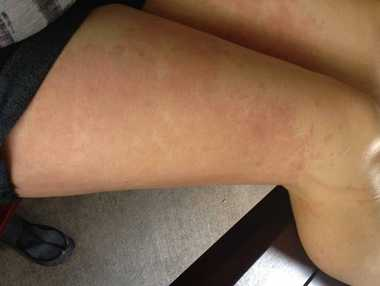 UNCOMFORTABLE: Dysart resident Belinda Keene has a rash which she believes was caused by the town's water supply.