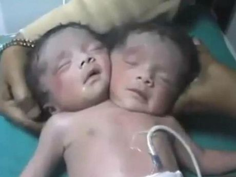 Woman gives birth to 'two-headed baby' in India ...